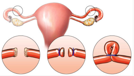 pomeroy women Approximately two-thirds of women with a pomeroy tubal ligation become pregnant following tubal ligation reversal tubal ligation procedures.