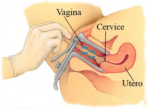 Pap Test The Diagnostic Test Called Pap