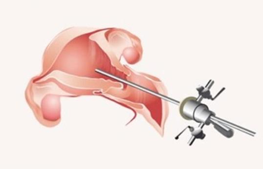 rektosel ameliyatı sonrası cinsel ilişki